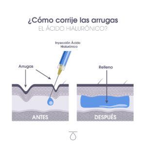 Simulación de piel antes y después del tratamiento con ácido hialurónico