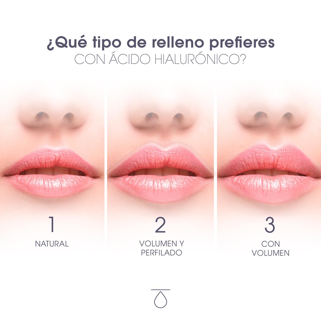 imagen tres labios distinto volumen