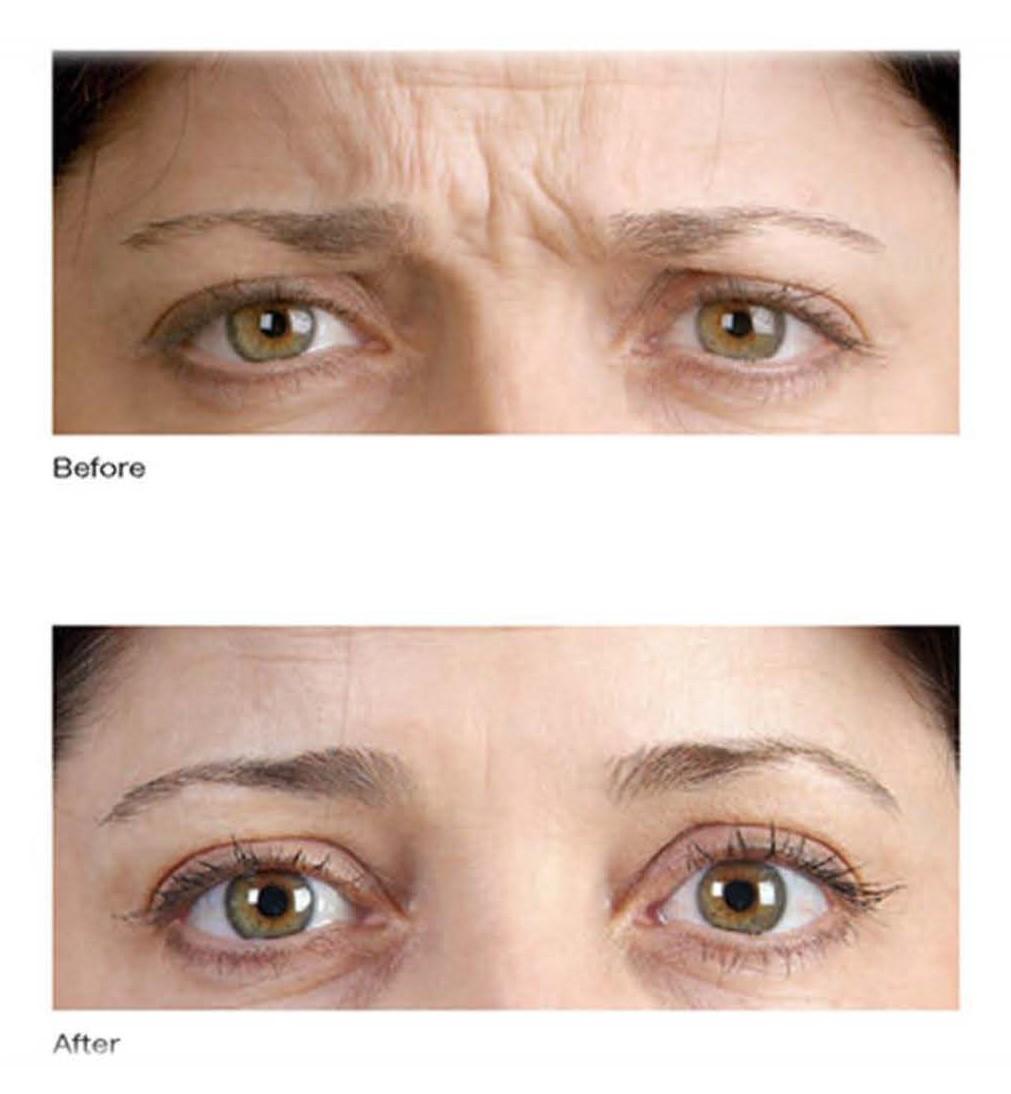 arrugas expresion botox